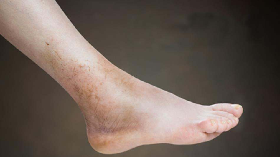 What can cause foot edema causes